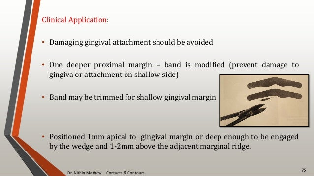 Dr. Nithin Mathew – Contacts & Contours 75 Clinical Application: • Damaging gingival attachment should be avoided • One de...