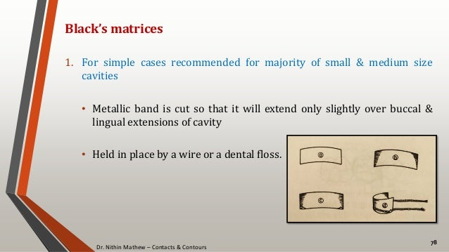 Dr. Nithin Mathew – Contacts & Contours 78 Black's matrices 1. For simple cases recommended for majority of small & medium...