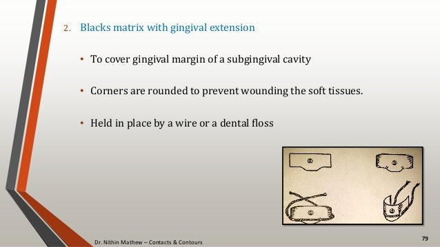 Dr. Nithin Mathew – Contacts & Contours 79 2. Blacks matrix with gingival extension • To cover gingival margin of a subgin...