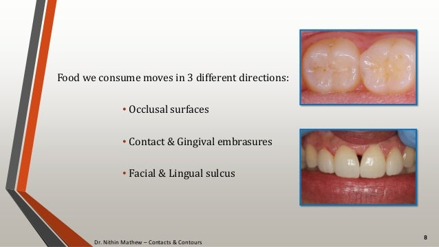 Dr. Nithin Mathew – Contacts & Contours 8 Food we consume moves in 3 different directions: • Occlusal surfaces • Contact &...