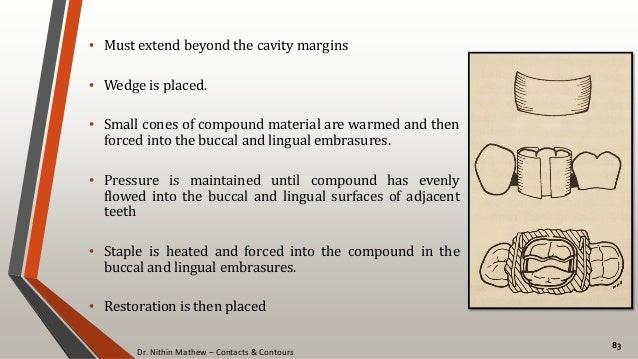 Dr. Nithin Mathew – Contacts & Contours 83 • Must extend beyond the cavity margins • Wedge is placed. • Small cones of com...