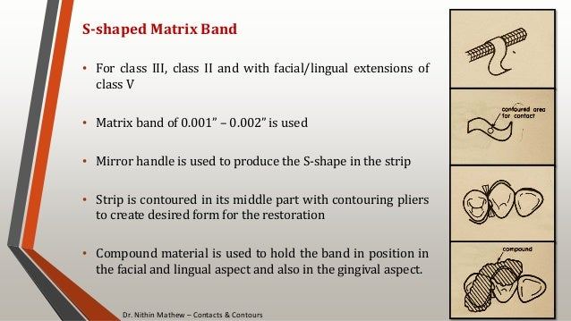 Dr. Nithin Mathew – Contacts & Contours 86 S-shaped Matrix Band • For class III, class II and with facial/lingual extensio...