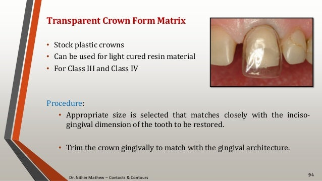 Dr. Nithin Mathew – Contacts & Contours 94 Transparent Crown Form Matrix • Stock plastic crowns • Can be used for light cu...