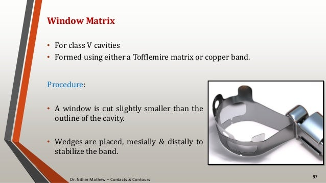 Dr. Nithin Mathew – Contacts & Contours 97 Window Matrix • For class V cavities • Formed using either a Tofflemire matrix ...