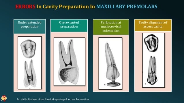 10 3 Failiure to explore 3rd canal/ 2nd canalBroken instrument ERRORS In Cavity Preparation In MAXILLARY PREMOLARS Dr. Nit...