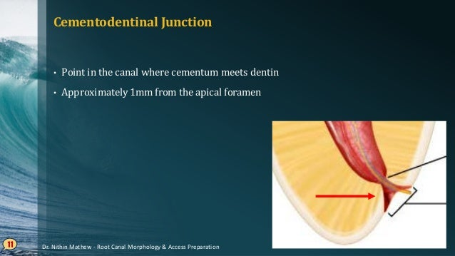Apical Foramen (Major Apical Diameter) • Differentiate the terminal of cemental canal from the exterior surface of the too...