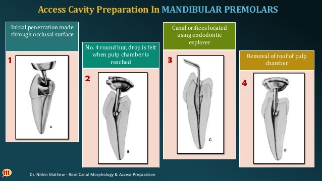 112 Buccolingual extension and finish of cavity walls using fissure bur Final preparation should provide unobstructed acce...