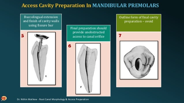 ERRORS In Cavity Preparation In MANDIBULAR PREMOLARS 113 Perforation at the mesiogingival Incomplete preparation & instrum...