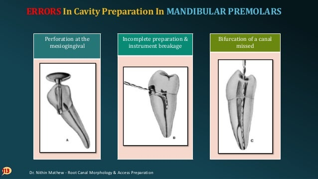 114 Perforation of apical curvature Apical perforation ERRORS In Cavity Preparation In MANDIBULAR PREMOLARS Dr. Nithin Mat...