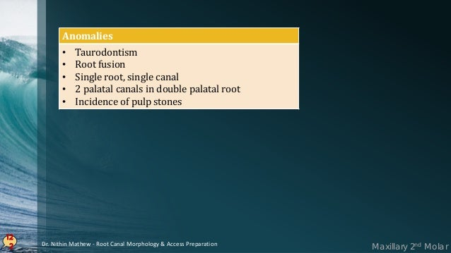 Access Cavity Preparation In MAXILLARY MOLARS 12 3 • Mesial and Distal boundary should be established • Mesial boundary fo...