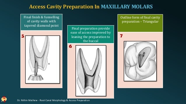 ERRORS In Cavity Preparation In MAXILLARY MOLARS 12 6 Underextended / Over extended preparation Perforation into furcation...