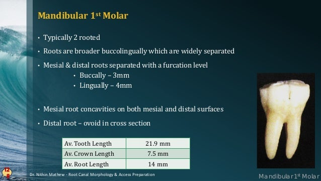12 9 PULP CHAMBER • 4 pulp horns : MB, ML, DB, DL • 3 distinct orifices : MB, ML & distal • Roof – Rectangular in shape • ...