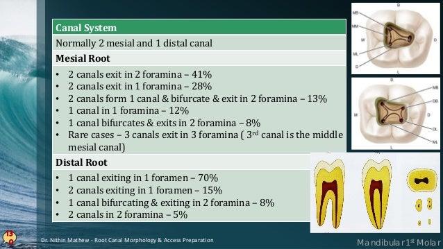 131 Anomalies • Taurodontism (most common) • Supernumery Roots – Radix Entomolaris • C-shaped canals Mandibular 1st MolarD...