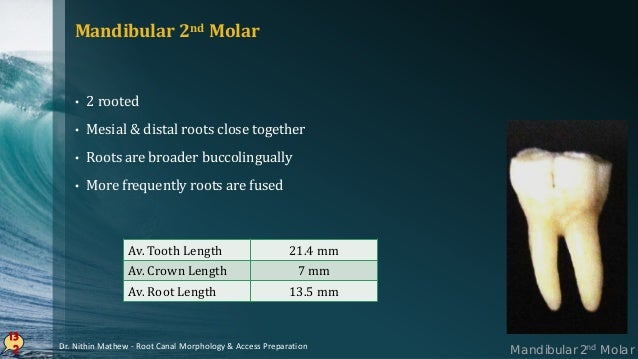 13 3 PULP CHAMBER • Similar to 1st molar but smaller in size Canal System • Mesial root – higher incidence of 1 canal – 14...
