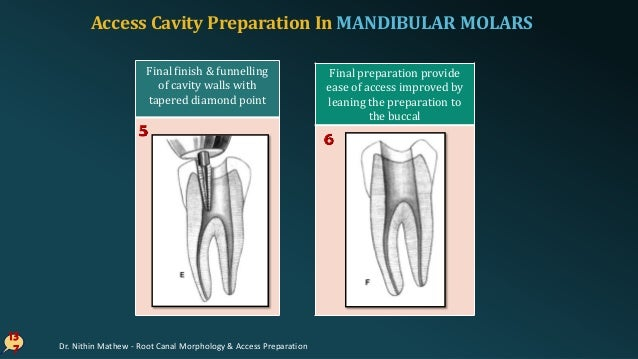 ERRORS In Cavity Preparation In MANDIBULAR MOLARS 13 8 Over-extended preparation Perforation into furcation Disoriented oc...