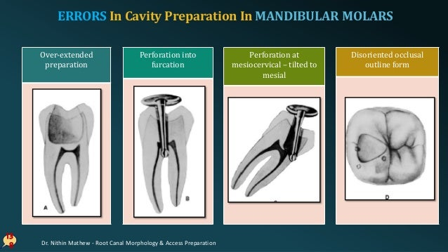 ERRORS In Cavity Preparation In MANDIBULAR MOLARS 13 9 Failure of finding 2nd distal canal Perforation of distal rootLedge...