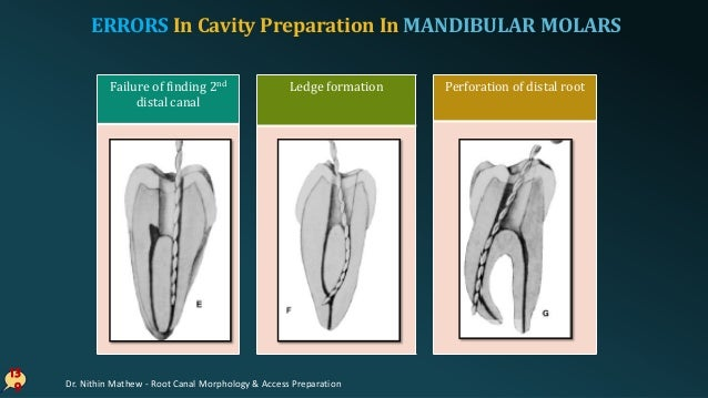 Access Cavity Preparation In Teeth with Calcified Canals 14 0 Mandibular first molar with a Class I restoration, calcified...