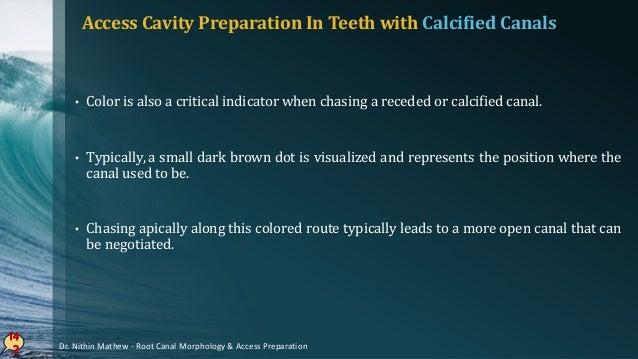 Apical Diameter - Cohen 14 3 Teeth Mean Value (µm) Maxillary incisors 289.4 Mandibular incisors 262.5 Maxillary premolars ...