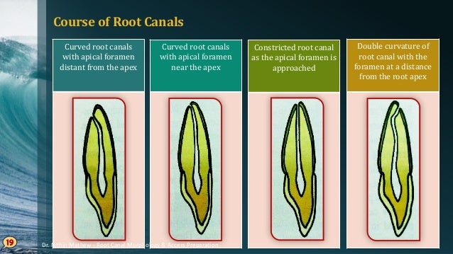 Shape of the Canals - Torabineajad • Six different shapes have been noted • Round • Oval • Deep oval • Bowling pin • Kidne...