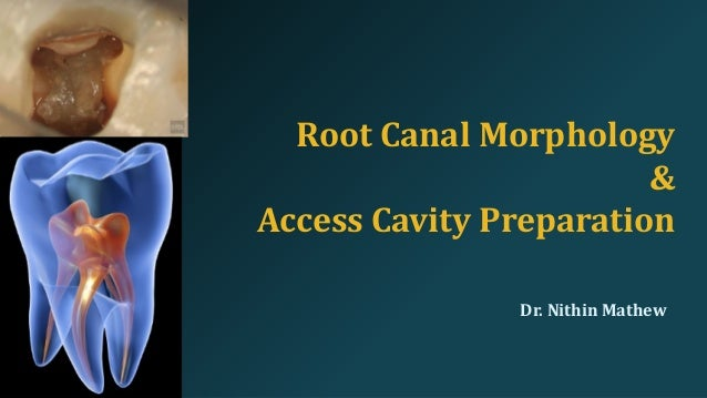 CONTENTS • Introduction • Root canal system • Classification • Guidelines for cavity preparation • Principles of Endodonti...