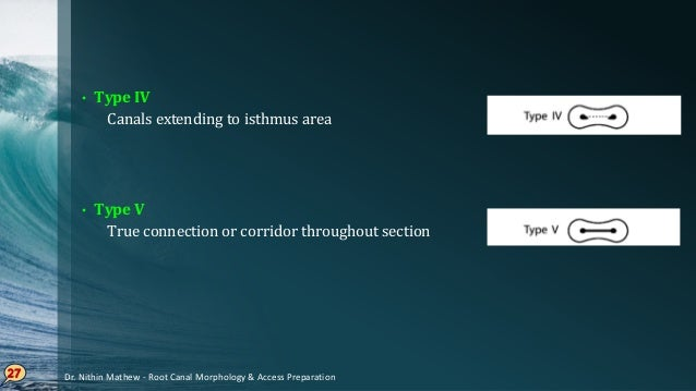 CLASSIFICATION OF ROOT CANAL SYSTEM Dr. Nithin Mathew - Root Canal Morphology & Access Preparation 28