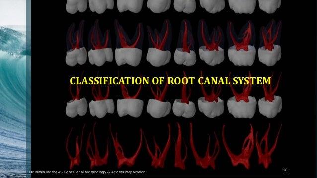 According to Weine 29 Type I Type II Type III Type IV Dr. Nithin Mathew - Root Canal Morphology & Access Preparation