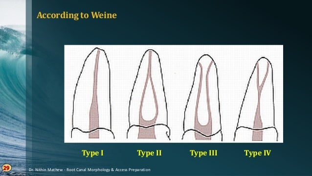 According to Vertucci 30 Dr. Nithin Mathew - Root Canal Morphology & Access Preparation