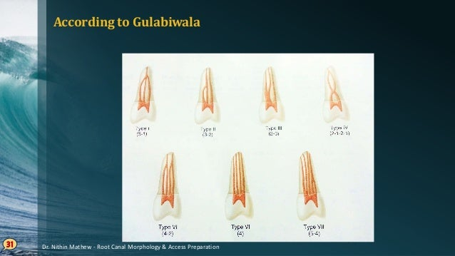 Root Canal Curvatures SCHNEIDER's classification on the basis of degree of curvature Straight• : 5 ̊ or less Moderate• : 1...