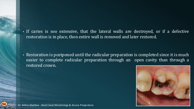 PRINCIPLE IV – Toilet of Cavity • All caries, debris & necrotic material must be removed from the chamber before the radic...