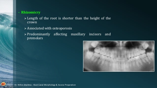 Maxillary Central Incisor • Single rooted, straight root trunk • Triangular / ovoid in cross section, tapers towards lingu...