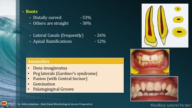 Maxillary Canine • Single rooted, largest tooth in dentition • Root is wider labiolingually • Developmental depressions pr...