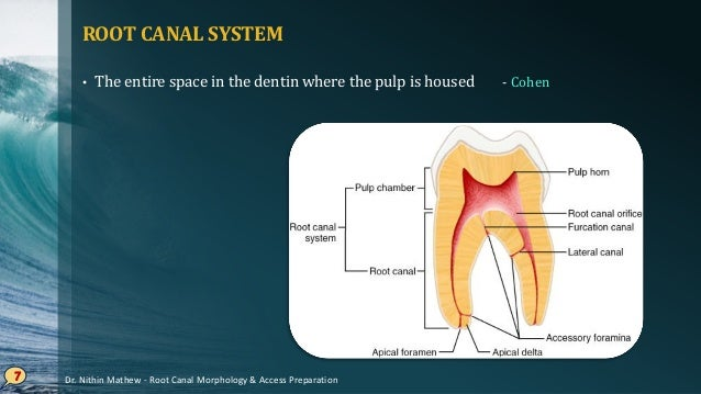 PULP CHAMBER • Roof of pulp chamber • Dentin covering the pulp chamber occlusally or incisally. • Pulp horn • Accentuation...