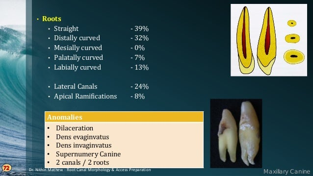 Access Cavity Preparation In MAXILLARY ANTERIOR TEETH 73 Initial penetration is made at the exact center of lingual surfac...
