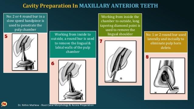 75 Final preparation: triangular internal anatomy in young teeth Cavity preparation in adult- ovoid Cavity Preparation In ...