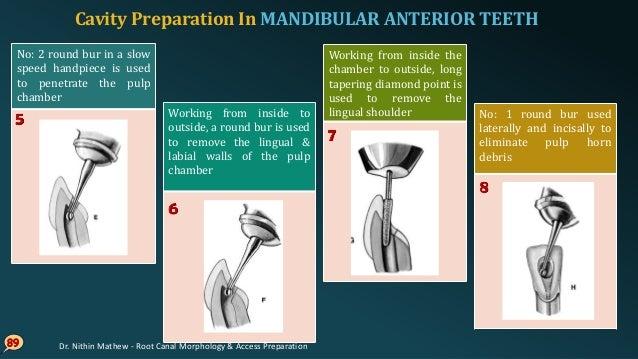90 Final preparation: triangular internal anatomy in young teeth Cavity preparation in adult- ovoid Cavity Preparation In ...