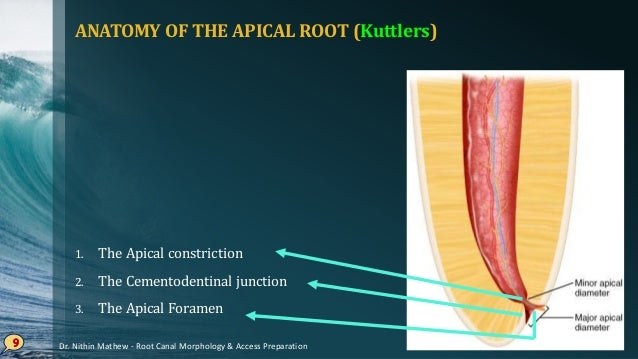 Root Canal Morphology Access Preparation