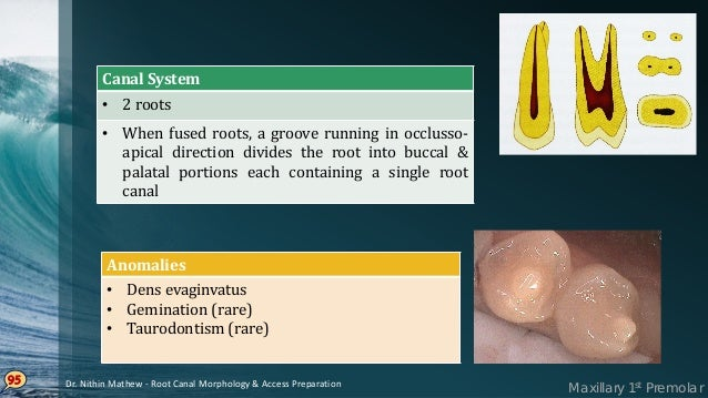 Maxillary 2nd Premolar Single• rooted form – most common Broader• buccopalatally & narrow mesiodistally Prominent• develop...