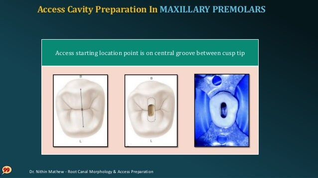 Access Cavity Preparation In MAXILLARY PREMOLARS 10 0 Initial penetration made with bur parallel long axis of tooth No. 2/...