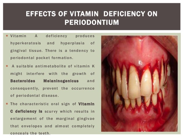 nutrition and periodontal disease pdf