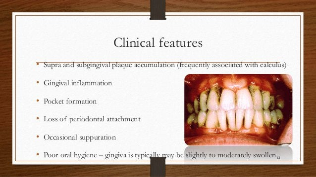 Clinical features • Supra and subgingival plaque accumulation (frequently associated with calculus) • Gingival inflammatio...