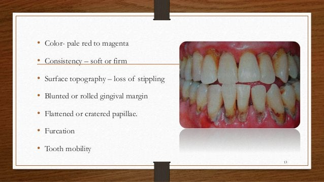• Color- pale red to magenta • Consistency – soft or firm • Surface topography – loss of stippling • Blunted or rolled gin...