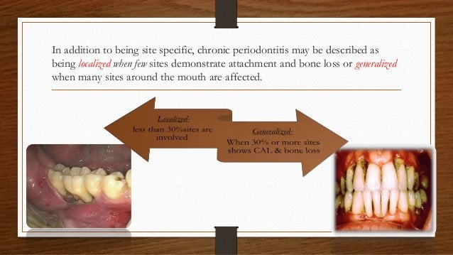 In addition to being site specific, chronic periodontitis may be described as being localized when few sites demonstrate a...