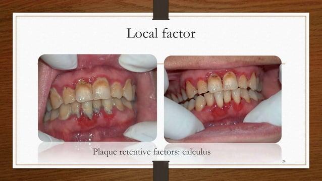 Local factor Plaque retentive factors: calculus 28