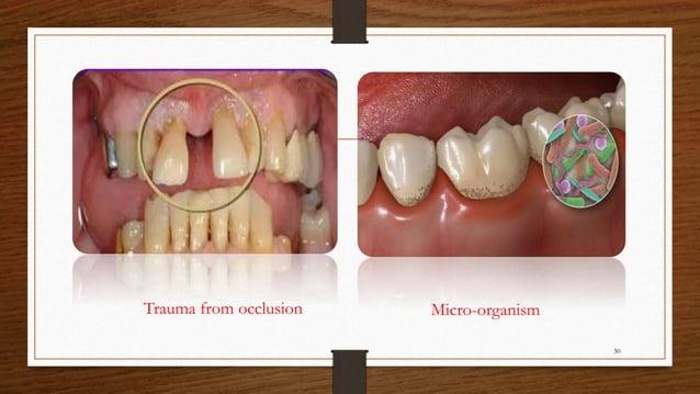Trauma from occlusion Micro-organism 30