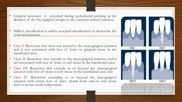 • Gingival recession is recorded during periodontal probing as the distance of the free gingival margin to the cemento-ena...