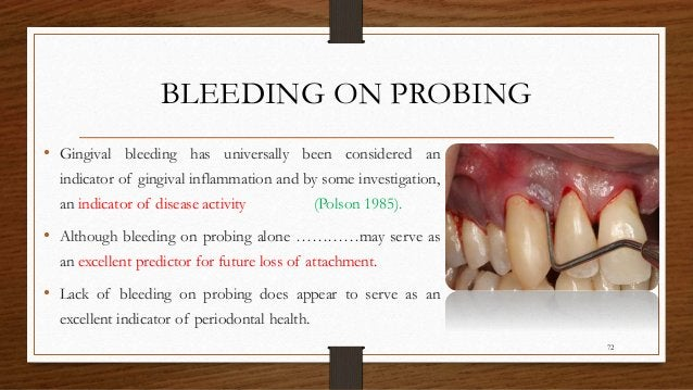 BLEEDING ON PROBING • Gingival bleeding has universally been considered an indicator of gingival inflammation and by some ...