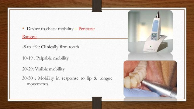 • Device to check mobility – Periotest Ranges: -8 to +9 : Clinically firm tooth 10-19 : Palpable mobility 20-29: Visible m...