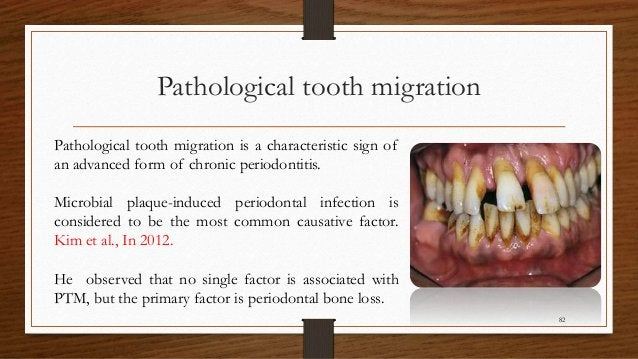Pathological tooth migration 82 Pathological tooth migration is a characteristic sign of an advanced form of chronic perio...