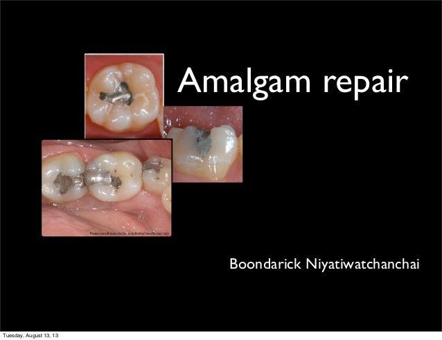 Amalgam repair  Boondarick Niyatiwatchanchai  Tuesday, August 13, 13