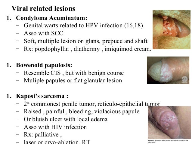lesions-on-the-penis